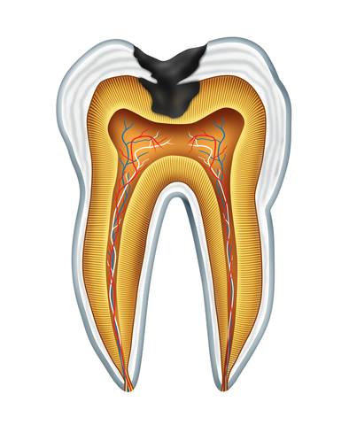 Fillings for Tooth Cavities and Tooth Decay
